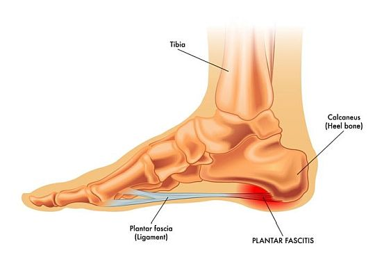 Plantar fascitis illustration