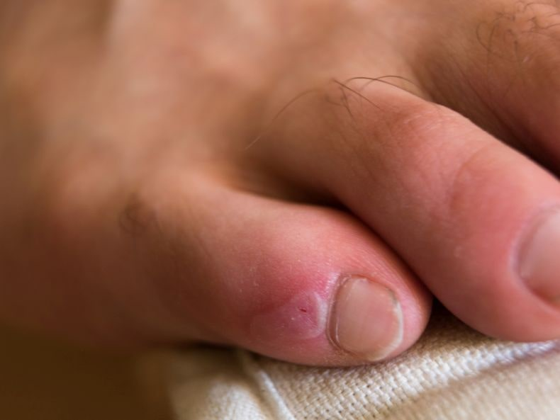 blister on a toe