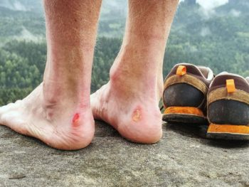 hiker with blisters